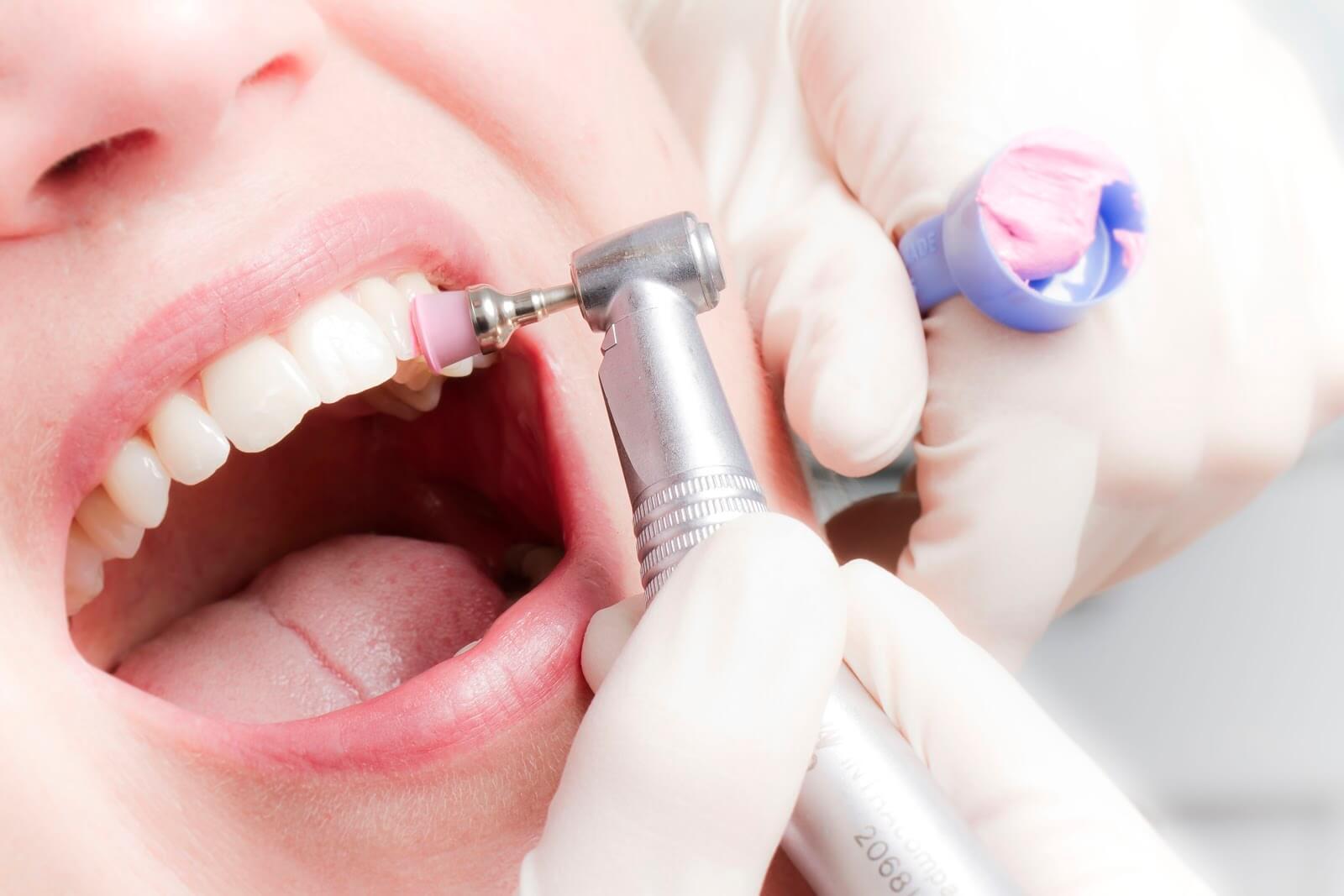 Профессиональная гигиена полости рта: дополнительные показания