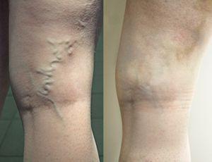 склеротерапия: до и после